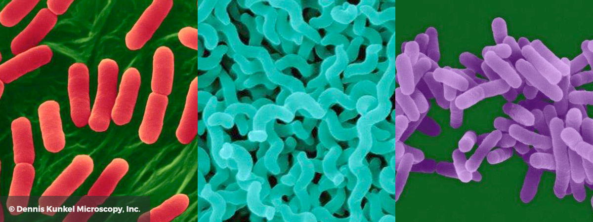 Images of Pathogens by Dennis Kunkel