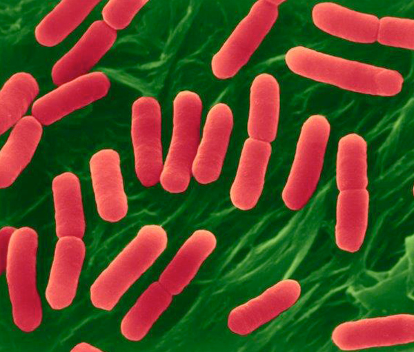 Picture of Picture of E. coli O157:H7, Escherichia coli